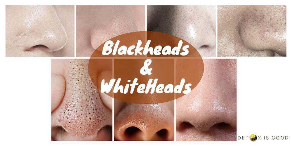 blackheads whiteheads