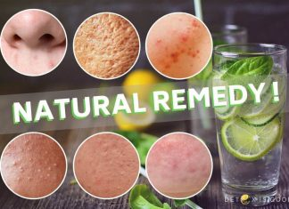 detox water for acne scar
