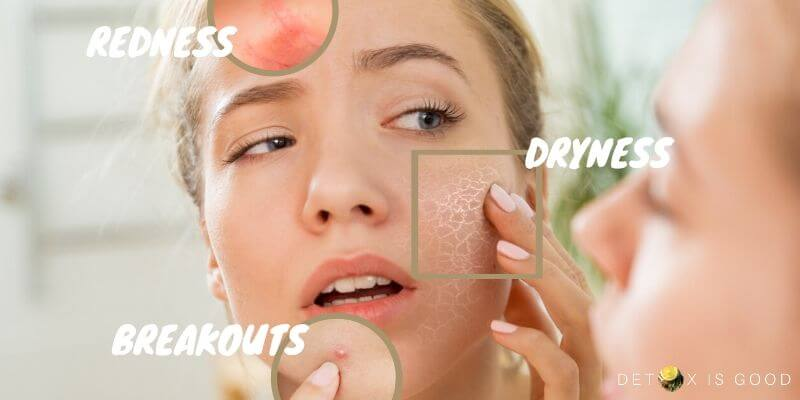 skin breakouts redness dryness