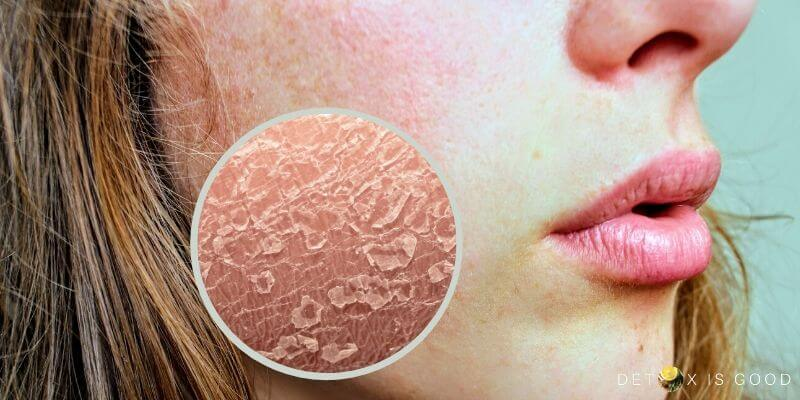 skin redness dryness